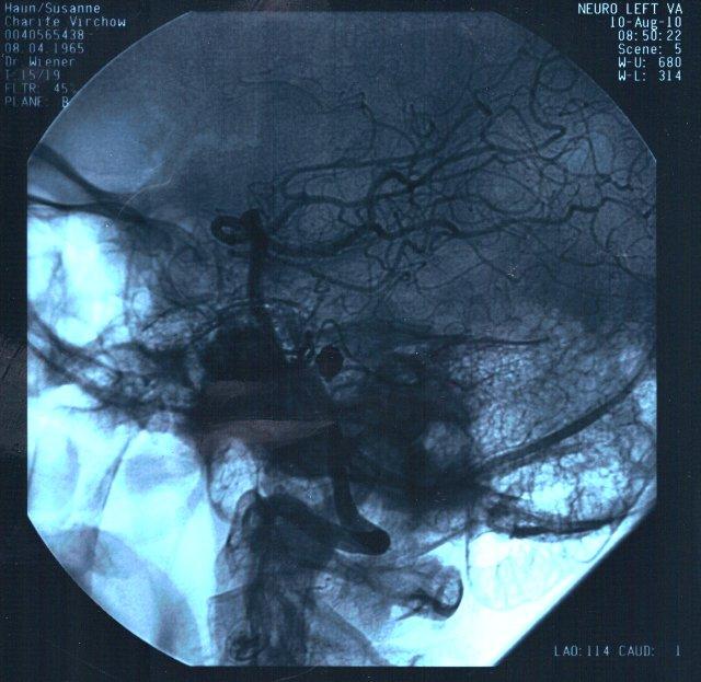 Angiografie der linken Gehirnhälfte von Susanne Haun
